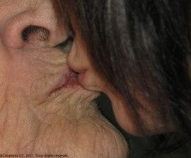 Ma soeur embrassant ma mère qui souffrait  d'Alzheimer.